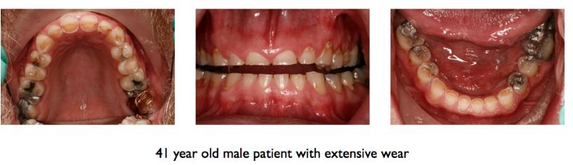 tooth wear figure 2