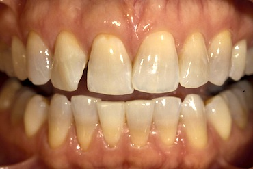 Correction of Misaligned Teeth with Restorations