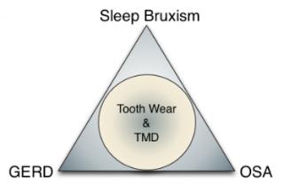 tooth wear figure 1