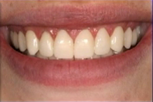 The Importance of Evaluating Temporary Veneers