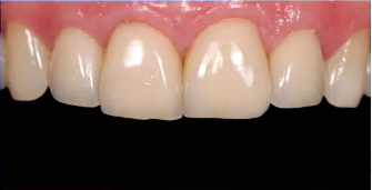 The Beauty of the Custom Incisal Guide Table