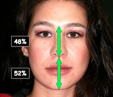 Evaluating Facial Esthetics: Vertical Proportion
