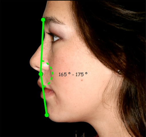 Evaluating Facial Esthetics: Facial Profile