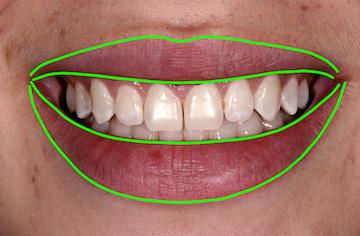Evaluating Facial Esthetics: Lip Symmetry