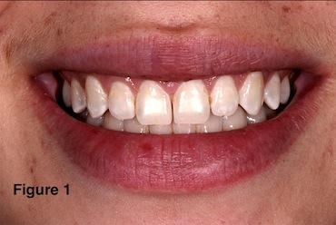 Evaluating Facial Esthetics: Lip Fullness