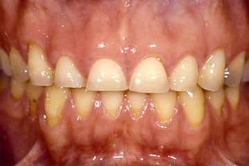 Positioning Maxillary Central Incisal Edges