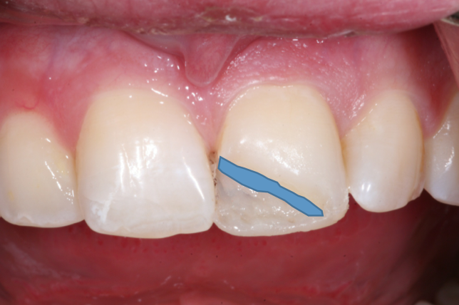 Develop a Restoration That Blends With Tooth Structure