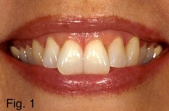 central incisors image 1