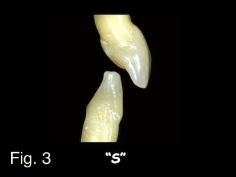saying s sounds in provisional restorations image 1