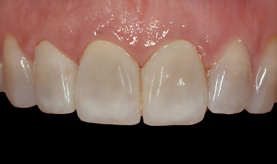 Custom Staining Provisional Restorations