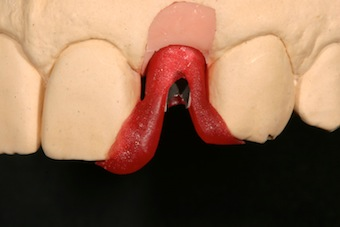 Using an Implant Abutment Placement Jig