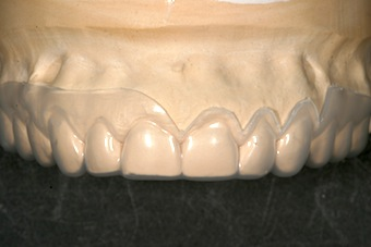 Fabricating Surgical Guides for Esthetic Crown-Lengthening Procedures