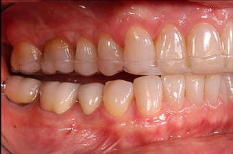 Occlusal Appliances: Diagnosing Muscle and Joint Pain