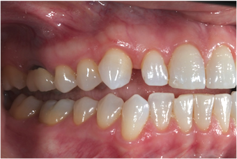 Conventional Orthodontics Versus Invisalign