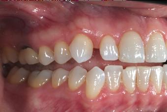 Conventional Orthodontics Versus Invisalign