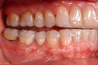 Occlusal Appliances: The Anterior-only Appliance for Treating Muscle Pain (Part I)