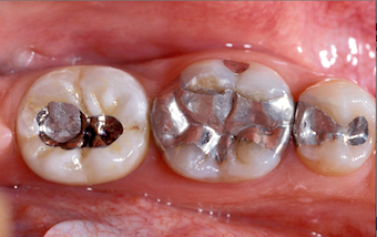 Understanding Screw-Retained Implant Restorations