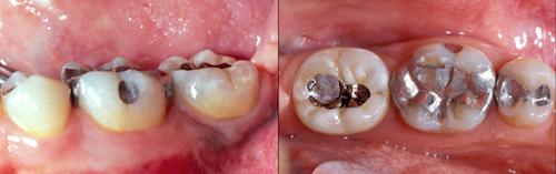 screw-retained implant restorations figure 1