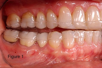 occlusal appliances image 1
