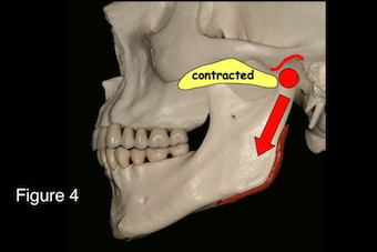occlusal appliances image 4