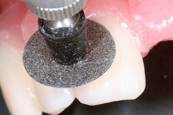 Completing Class IV Restorations: Finishing and Polishing