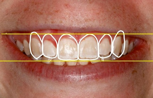 Five Critical Criteria for Digital Smile Design