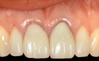 Restoring Discolored Endodontically Treated Teeth: Case 2