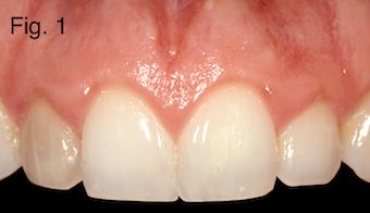 endodontically treated teeth Figure 1