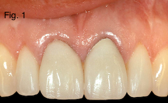 Restoring Discolored Endodontically Treated Teeth Figure 1