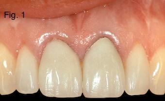 Restoring Discolored Endodontically Treated Teeth Figure 1