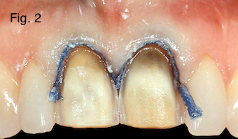Restoring Discolored Endodontically Treated Teeth Figure 2