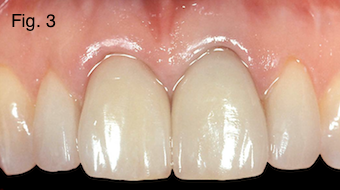Restoring Discolored Endodontically Treated Teeth Figure 3