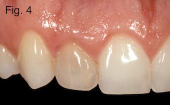 endodontically treated teeth Figure 4