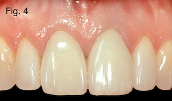 Restoring Discolored Endodontically Treated Teeth Figure 4