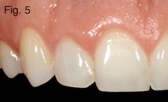 endodontically treated teeth Figure 5