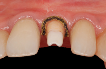 How to Minimize Residual Cement on Implant Restorations