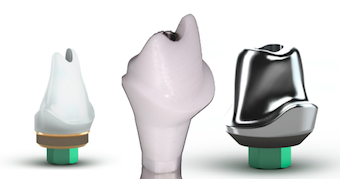 Understanding Cement-Retained Implant Restorations