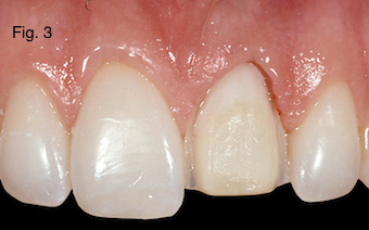 Restoring Discolored Endodontically Treated Teeth Figure 3