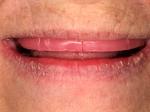 Denture-3