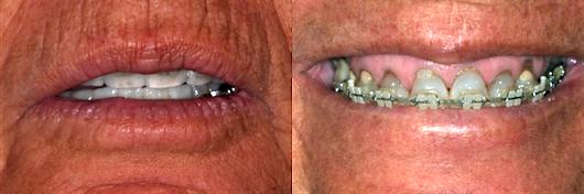 photos for dental diagnosis