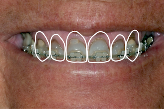 dental diagnosis photos