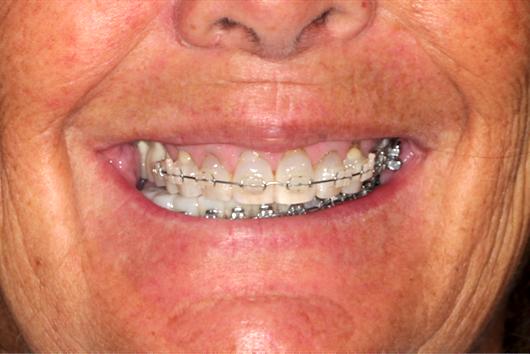 diagnosis dental photos