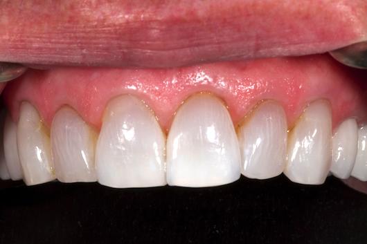 dental photos