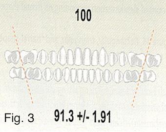 bolton ratio Figure 3