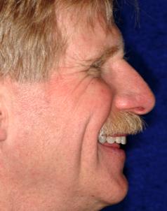 profile dental photo