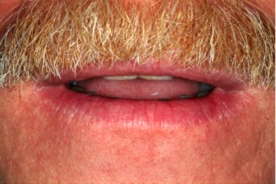 lips at rest dental photo