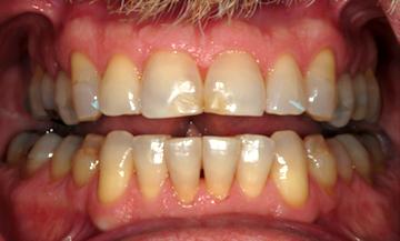 retracted teeth apart dental photo
