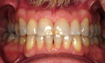 retracted teeth together dental photo