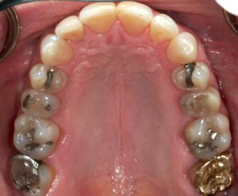 maxillary dental photo