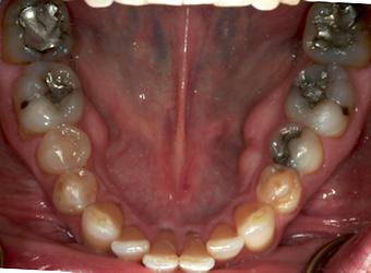 mandibular dental photo